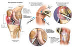 Left Knee Injuries and Arthroscopic Repairs