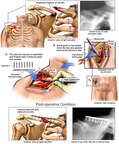Clavicular Fracture Fixation