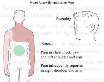 Heart Attack Symptoms for Men