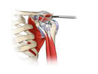 Acromioplasty in the Shoulder