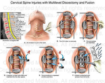 Cervical Spine Injuries with Multilevel Discectomy and Fusion