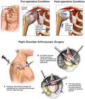 Right Shoulder Instability with Initial Arthroscopic Repairs