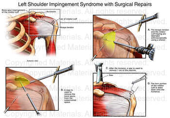Left Shoulder Impingement Syndrome with Surgical Repairs