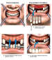 Loss of Multiple Teeth with Surgical Restoration