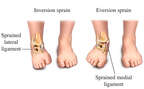 Ankle Inversion and Eversion