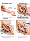 Left Elbow Injury with Surgical Repair