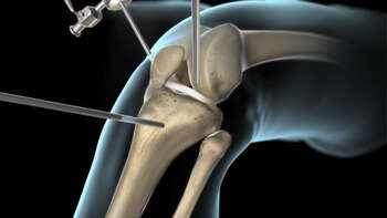 Anterior Cruciate Ligament (ACL) Surgery