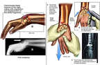 Right Wrist Fracture with Initial Surgical Fixation