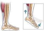 Achilles Tendon: Lateral (Side) View