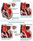 Progression of Endocarditis