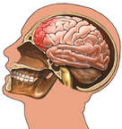 Brain with Whiplash Injury, Lateral View
