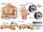 Post Accident Injuries with Multiple Surgical Repairs to the Right Wrist