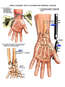 Surgical Repairs of Open Wrist Fractures