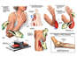 Surgical Repairs of Arm Injuries