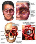 Post-accident Facial Injuries Caused by Explosion