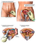 Laparotomy with Bowel Resection