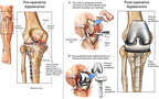Development of Post-traumatic Arthritis with Total Replacement of the Right Knee