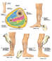 Compartment Syndrome with Four Compartment Fasciotomy Procedure