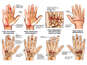 Post-accident Right Hand Injuries with Subsequent Conditions