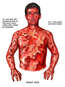 Male Torso with Post-accident Burn Injuries