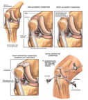 Progression of Right Knee Condition