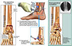 Post-Operative Condition of Right Ankle with Fusion