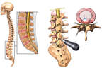 Lumbar Disc Injuries with Percutaneous Discectomy Surgery