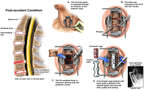 C5-6, C6-7 Cervical Disc Herniations with Anterior Corpectomy and Fusion
