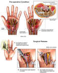 Bilateral Carpal Tunnel Syndrome with Surgical Release