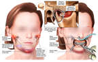 Girl Child Post-accident Chin and Mandible Injuries with Surgical Repairs