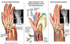 Left Wrist Fractures with Surgical Fixation