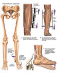 Proposed Surgical Repairs to Correct Left Leg Equinus and Drop Foot Deformities
