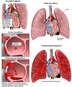 Undiagnosed Myocardial Infarction with Resulting Pulmonary Edema