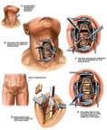 C4-5 Discectomy and Fusion Procedure