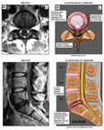 L5-S1 Lumbar Disc Herniation with MRI Interpretation