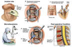 Three Level Anterior Cervical Microdiscectomy and Fusion C4-5, C5-6, and C6-7