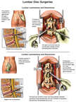 L3-4 Discectomy, Laminectomy and Laminotomy