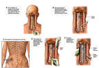 Cervical Spine Instability with Spinal Cord Impingement and Surgical Placement of Plates, Screws and Bone Grafts