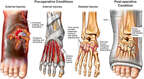 Crush Injuries of the Right Foot with Surgical Fixation