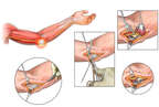 Left Cubital Tunnel Syndrome with Surgical Transposition