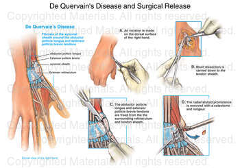 De Quervain's Disease and Surgical Release