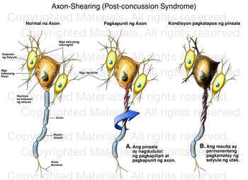 Axon-Shearing (Post-concussion Syndrome)
