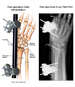 Surgical Fixation of the Right Wrist