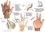 Surgical Repairs of Traumatic Crush Injury to the Hand