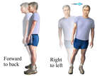 Exercises for Vertigo: Standing Sway