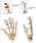 Right Index Finger Fractures