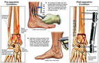 Mulitple Fractures of the Ankle and Leg