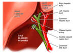 Removal of Gall Bladder